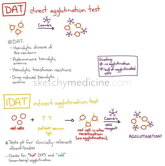 Direct and indirect antibody tests  Sketchy Medicine