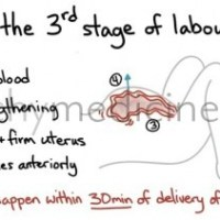 Signs of the 3rd Stage of Labour