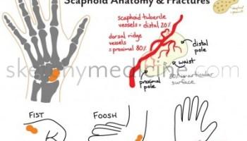 scaphoid_fractures