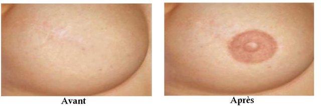 avant apres onco areole des seins
