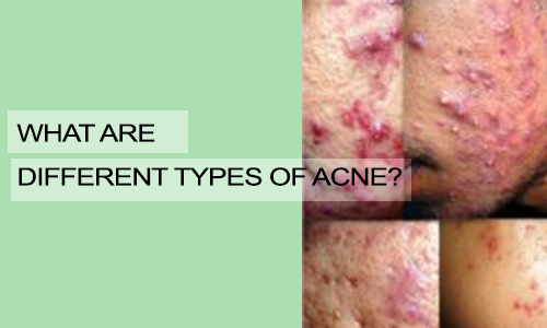 What are Different Types of Acne?