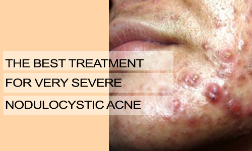 The Best Treatment for Very Severe Nodulocystic Acne