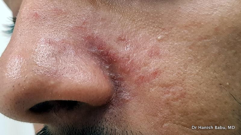 Seborrheic dermatitis in the nasal fold.