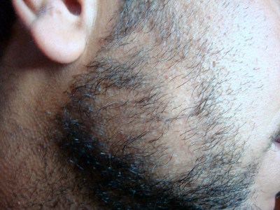Alopecia areata due to constant mobile use