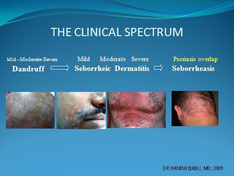 The Clinical Spectrum of Seborrheic Dermatitis