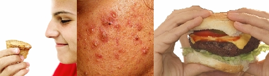 Certain Food Does Affect Acne: Dr Hanish Babu, MD, Dermatologist Sharjah and Ajman