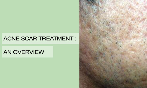 Acne Scar Treatment: An Overview