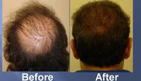 successful hair transplant before and after pics