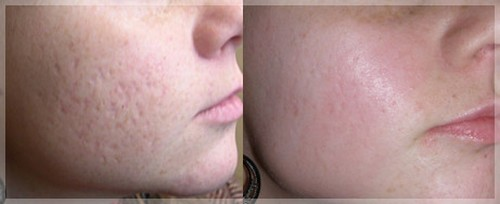 peeling visage acne avant apres