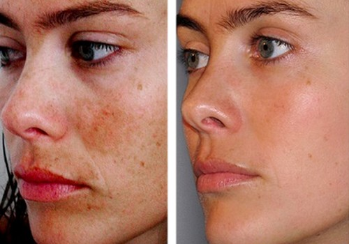 Comment utiliser un Peeling quand on a de l'Acné - Skin Campus