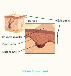 how does skin cancer develop skincancer net muliplying skin cancer diagrams layers of skin [ 1200 x 1200 Pixel ]