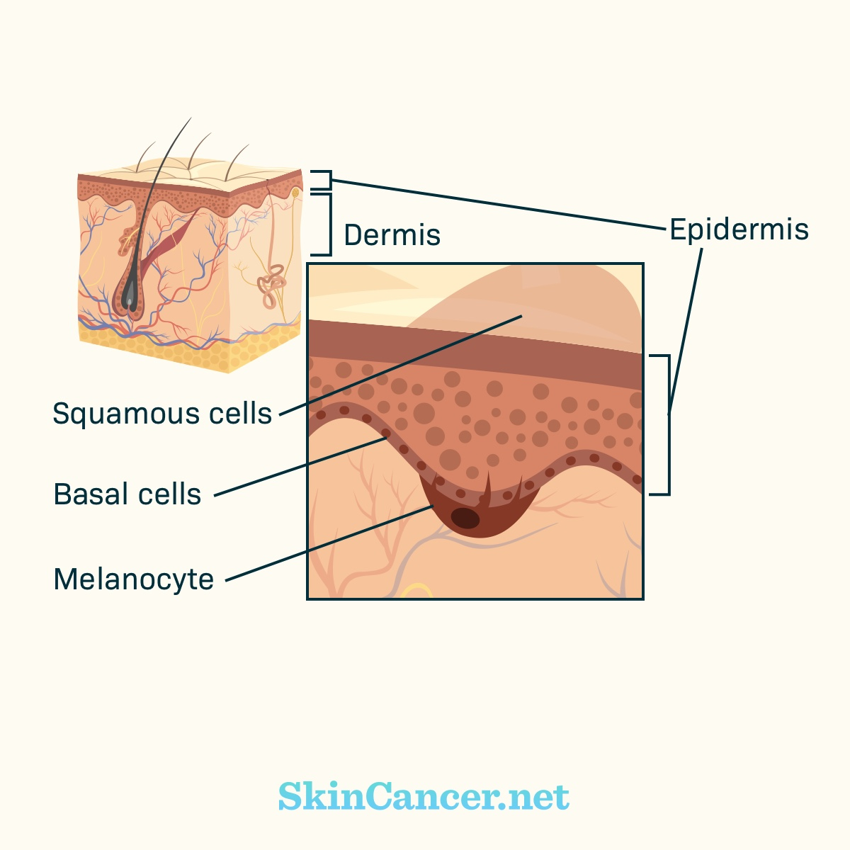 hight resolution of how does skin cancer develop skincancer net muliplying skin cancer diagrams layers of skin