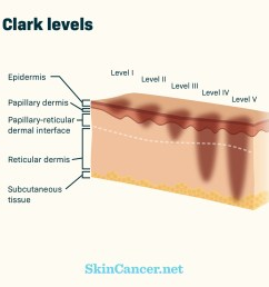of skin the tumor has invaded from the top layer of the skin level i to invasion of the tissue under the skin or subcutaneous tissue level v 4 8 [ 1200 x 1200 Pixel ]