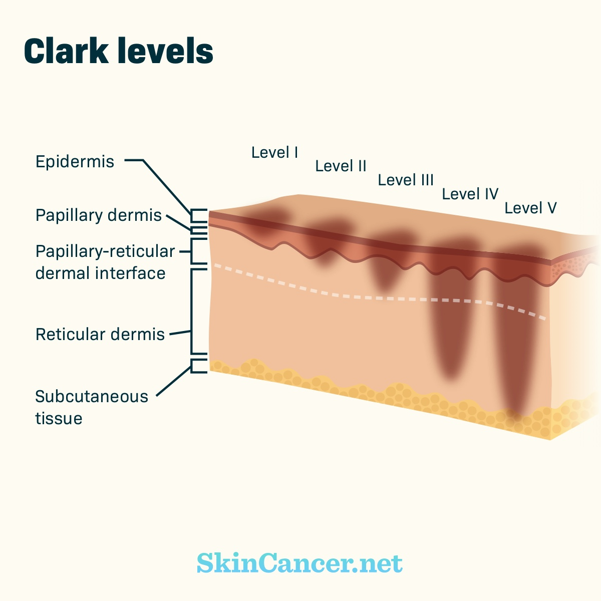 hight resolution of  of skin the tumor has invaded from the top layer of the skin level i to invasion of the tissue under the skin or subcutaneous tissue level v 4 8
