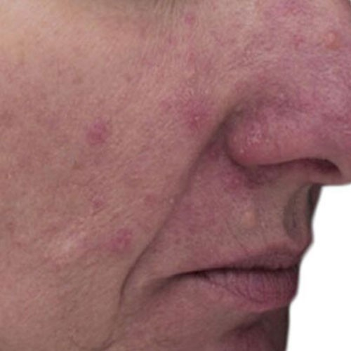 rosacea_2_after