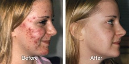 11-acne-before-after