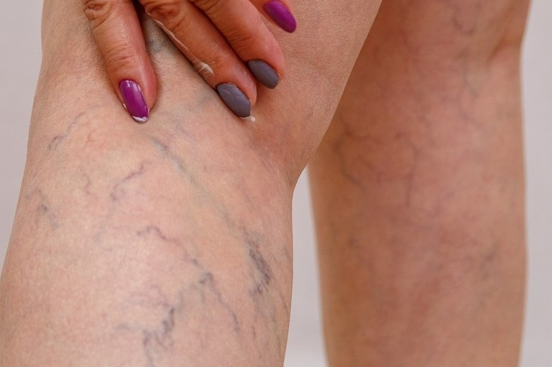 Green Veins and Blue Veins - Why are they Green or Blue ...