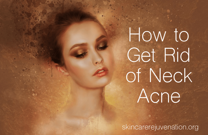 how to cure neck acne
