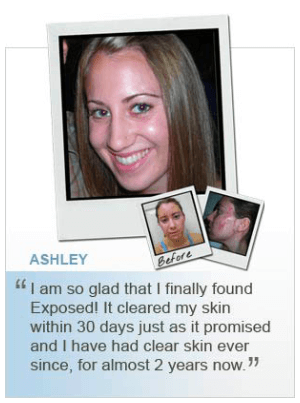 Ashley Before and After Using Exposed
