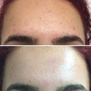 Chemical Peel Client Photo 3