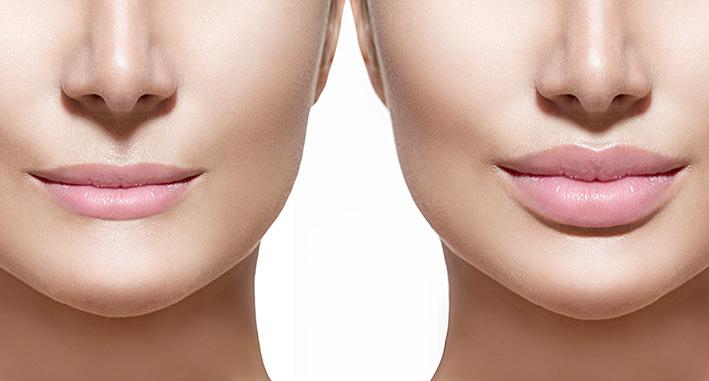 Lippenkorrektur