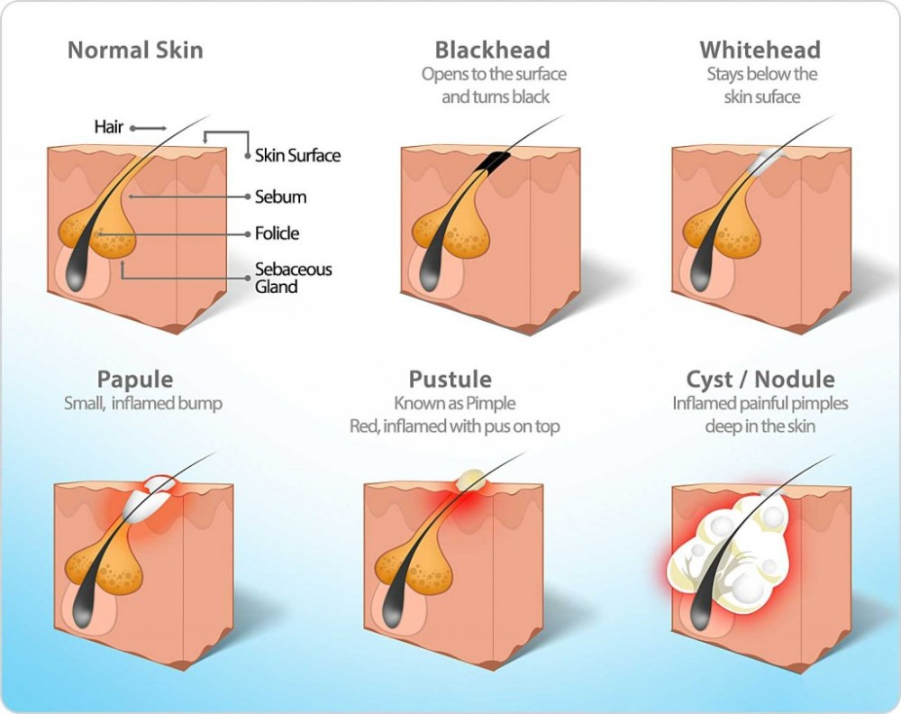 medium resolution of diagram of pore congestion types including acne blackhead whitehead pustule