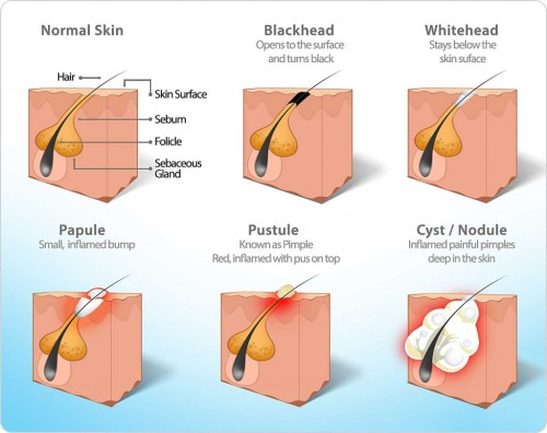 small resolution of diagram of pore congestion types including acne blackhead whitehead pustule