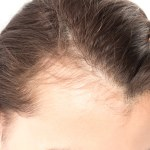 Laser Hair Removal and the Hair Growth Cycle