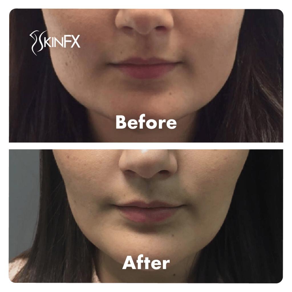 jaw de slăbire botox