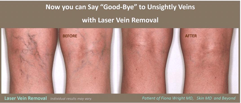Laser Vein Removal Plano TX Vascular Surgery Frisco TX