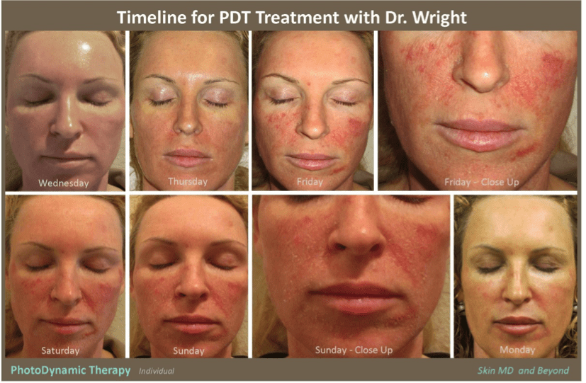Blue Light Treatment Acne