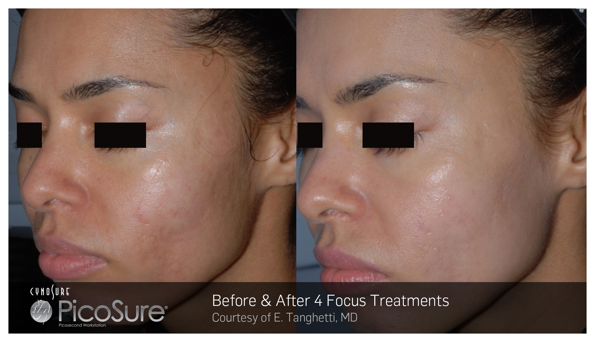 PicoSure 755 nm Picosecond Laser   SKIN MED Laser Clinic