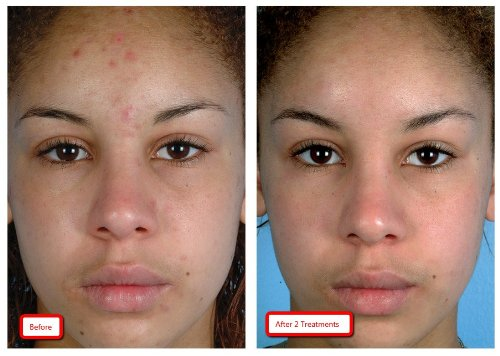 Microdermabrasion at Home: Here's What You Need to Know...
