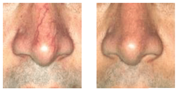 remove-capillaries-nose-denver