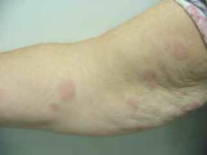 urticaria hives on the arms