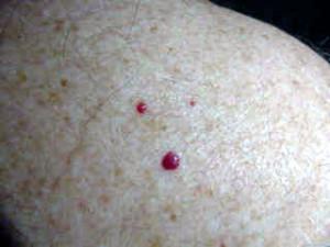 cherry angiomas skin blemish