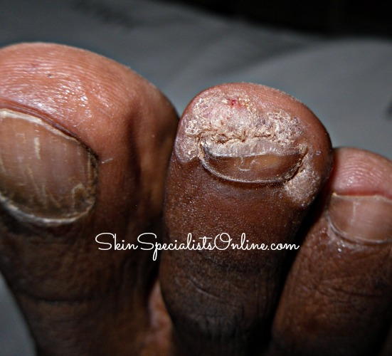 skin of color skin diseases pictures