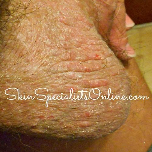 scrotum scabies