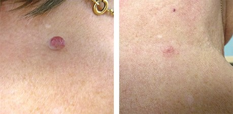 Image result for skin tag remove before after