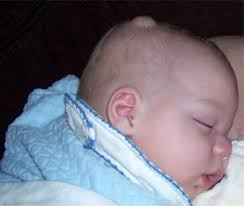 Hard Small Movable Lump on Baby Head – Causes Symptoms ...