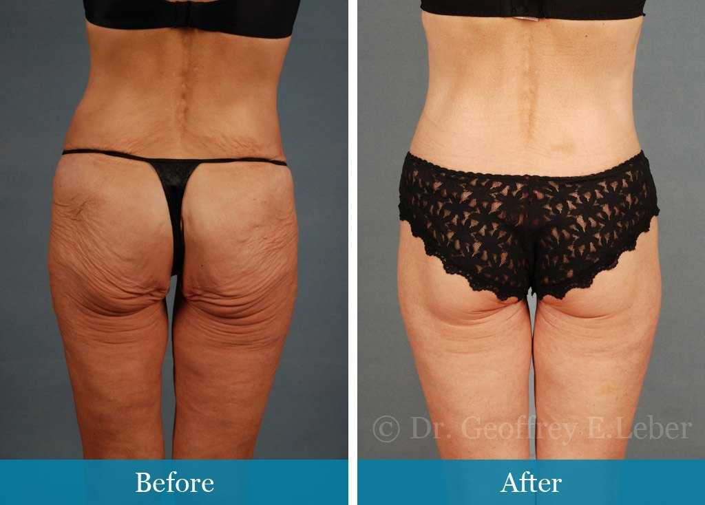 DIY At-Home Radiofrequency Treatment for Tighter Legs