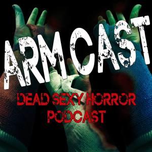 arm-cast