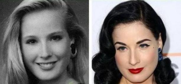 Дита фон Тиз до и после