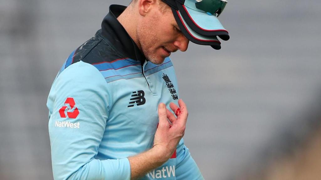 Eoin Morgan Has Been Ruled Out Of The INDvENG ODI