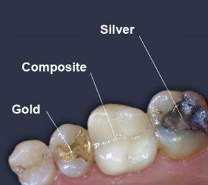 filling choices silver composite gold