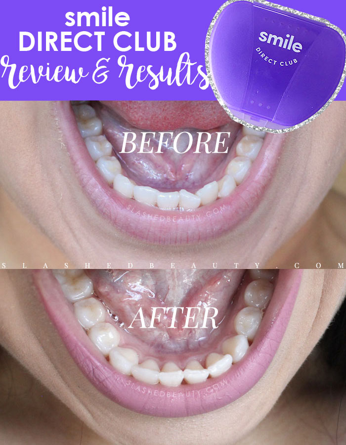 Smile Direct Aligners Not Fitting : smile, direct, aligners, fitting, REVIEW:, Smile, Direct, (Before, After), Slashed, Beauty