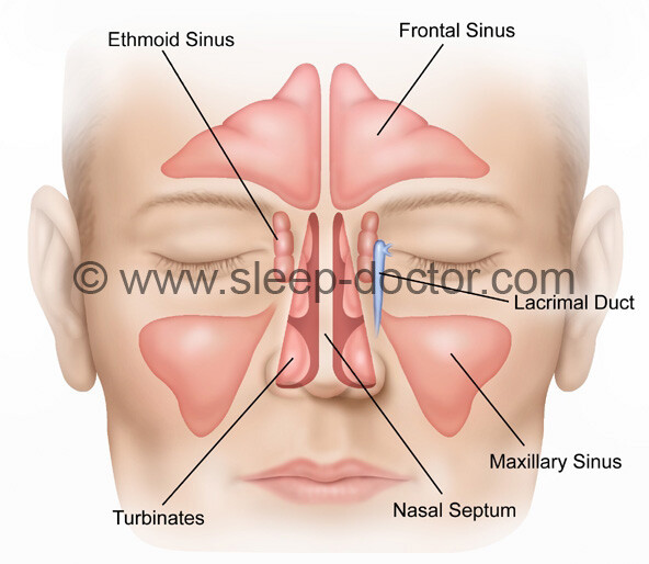 anatomical drawing showing nasal surgery for snoring