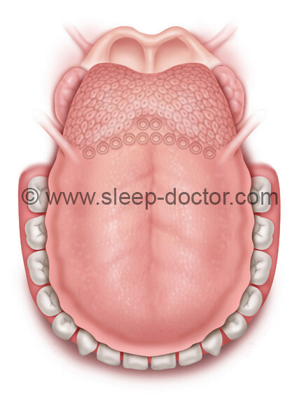 preoperative image before midline glossectomy for sleep apnea