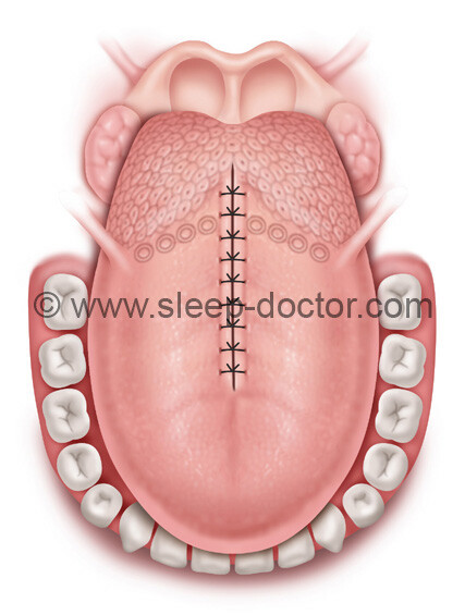 postoperative image after midline glossectomy surgery for sleep apnea