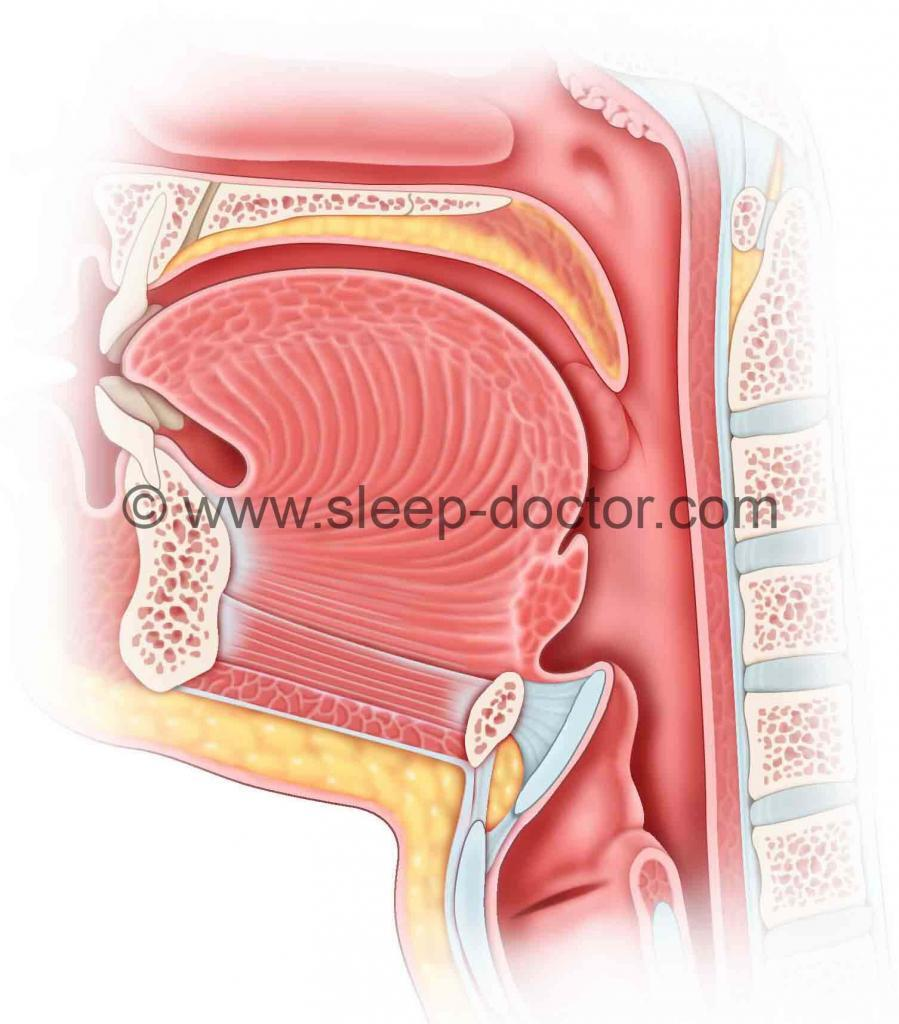 postoperative image after epiglottis surgery for sleep apnea